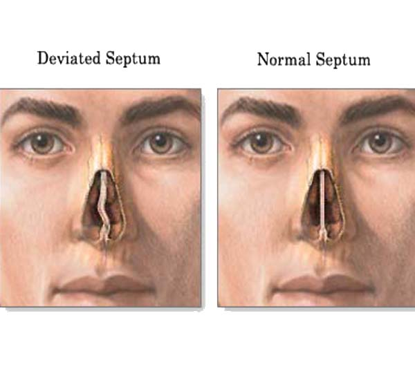 deviated-septum-before-after