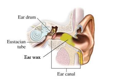 Removal Part Of Ear Canal In Dogs