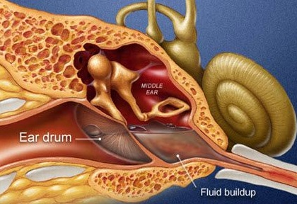 middle-ear-fluid