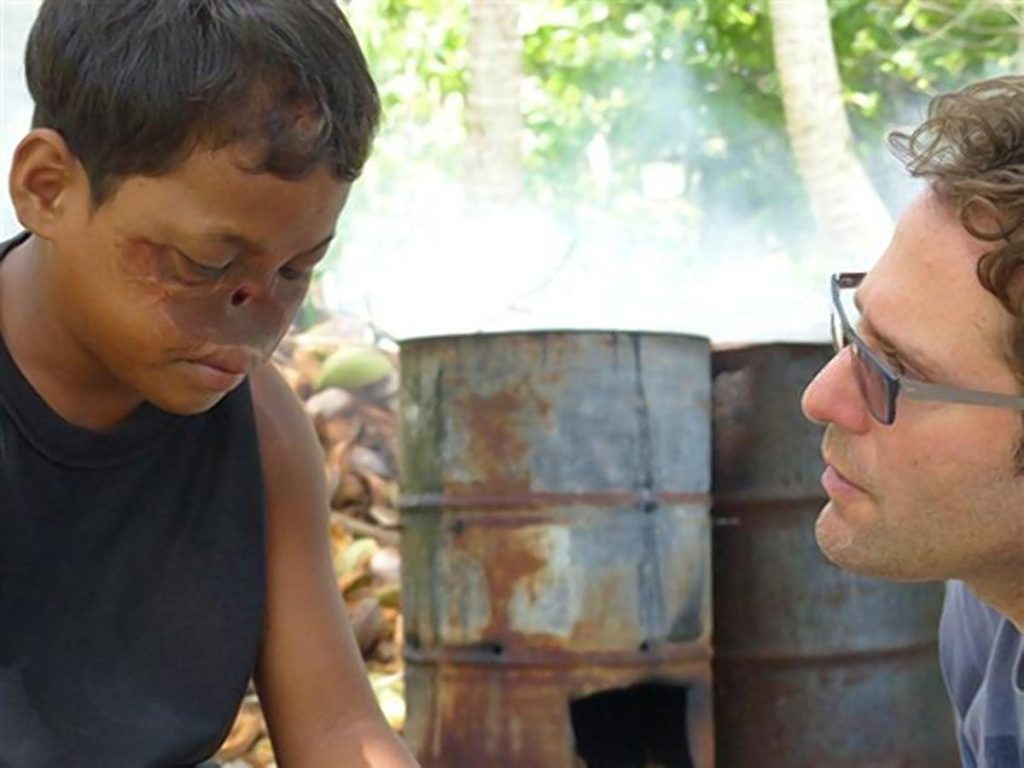 Dallan Jennet, from the Marshall Islands, fell on a live power line when he was 9 and his nose was essentially non-existent after getting badly burned. (OBTAINED BY NY DAILY NEWS/FOR NEW YORK DAILY NEWS)
