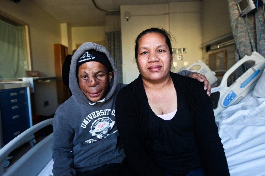 Dallan Jennet is pictured with his mother Ingrid Laik as he prepares to undergo another nasal surgery on Friday. (BYRON SMITH FOR NY DAILY NEWS/FOR NEW YORK DAILY NEWS)
